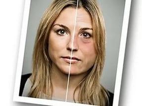 Почему алкоголь меняет внешность