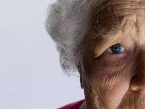 Женщина с болезнью сосудистой деменции